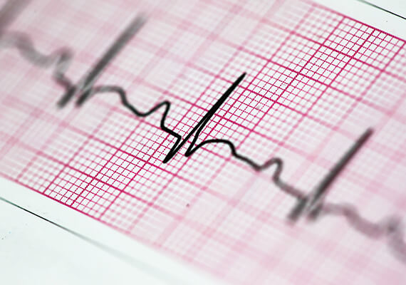 Comprehensive Solution Saves Hospital 30% on Rx Costs